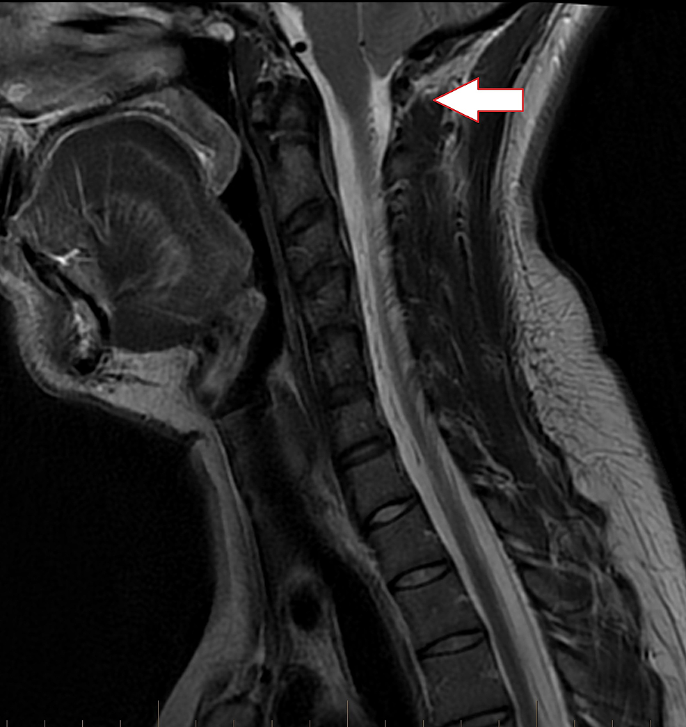 Sagittal-T2-cervical-spine-MRI-of-mid-line-revealing-inferior-descent-of-the-cerebellar-tonsils-below-the-level-of-the-foramen-magnum-down-to-the-level-of-the-C1-posterior-arch