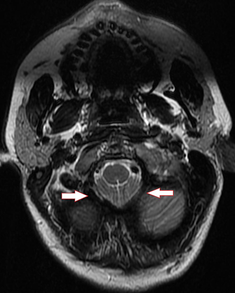 Axial-T2-cervical-spine-MRI-at-the-skull-base-demonstrating-crowding-of-the-foramen-magnum-and-inferior-descent-of-the-cerebellar-tonsils