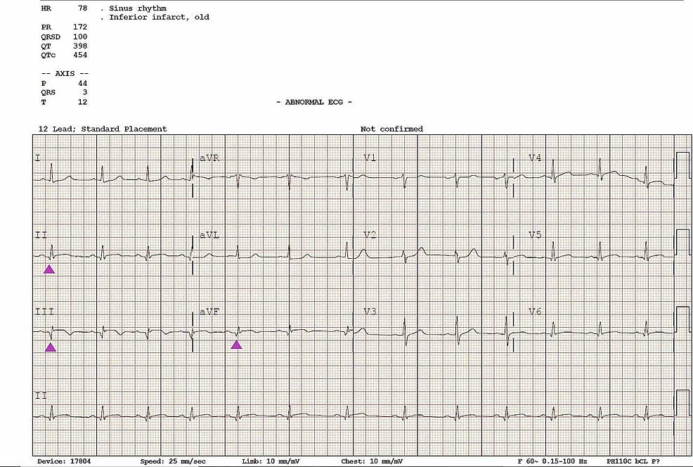 Electrocardiogram-(ECG)-post-intervention-demonstrating-morphological-changes-and-pathological-q-waves-(arrowheads)-consistent-with-a-previous-myocardial-infarction-(MI)