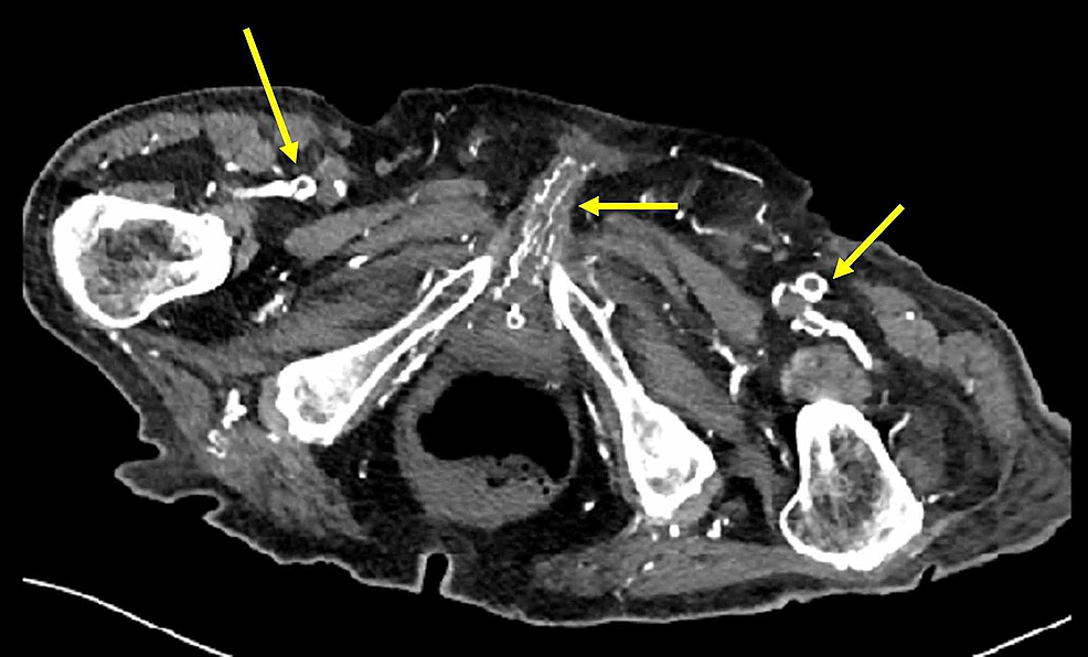 Axial-view-of-the-abdominal/pelvic-CT-scan