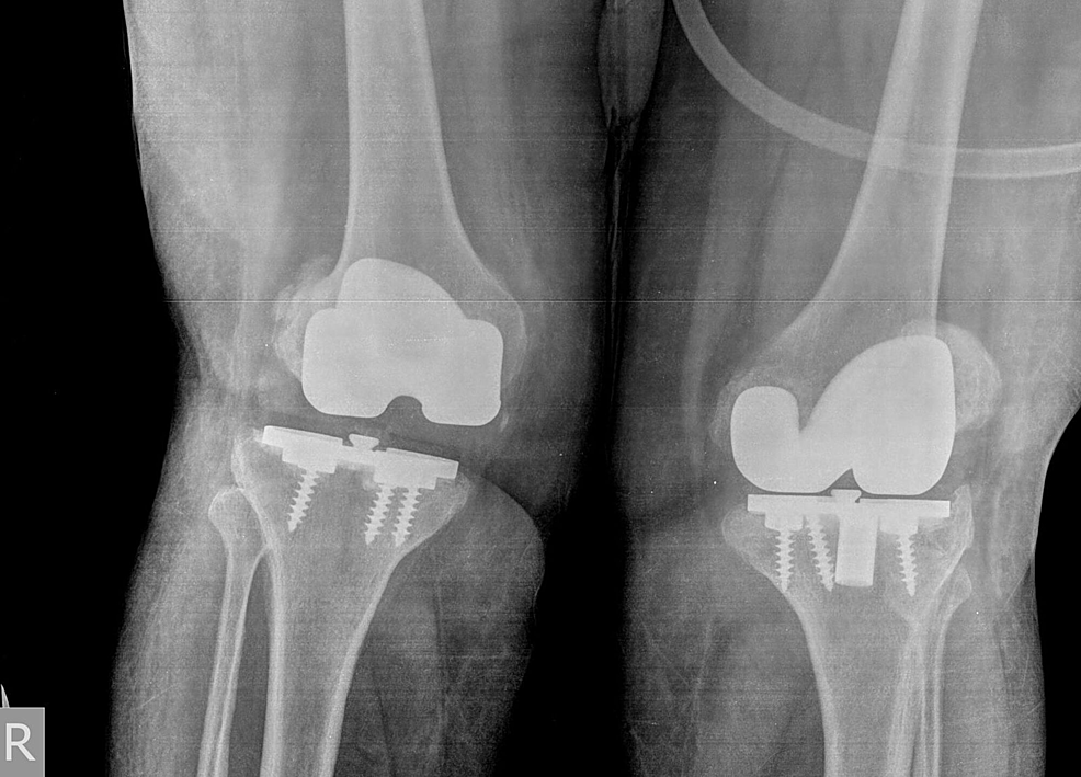 Preoperative-anteroposterior-(AP)-standing-radiograph-showing-bilateral-failed-total-knee-arthroplasties-(TKAs).