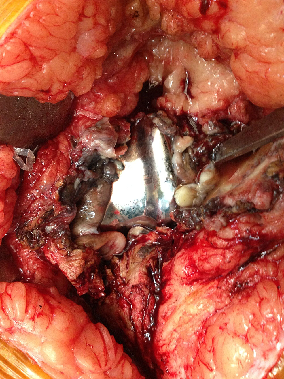 Intraoperative-picture-showing-implants-from-the-right-knee-with-extensive-debris-and-significant-wear-of-the-polyethylene-insert.