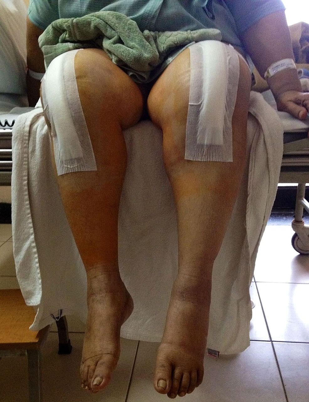 Pain-free-range-of-knee-motion-(0-90-degrees)-after-bilateral-revision-total-knee-arthroplasties-in-immediate-postoperative-period.