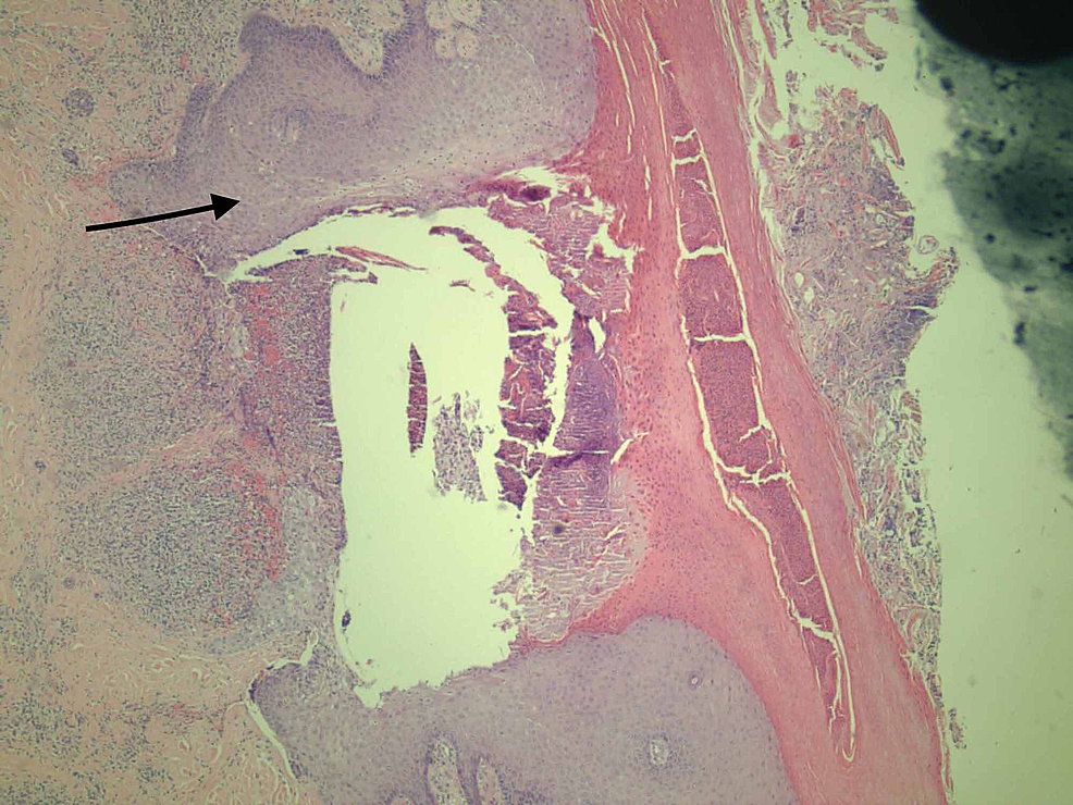 Necrotic-epidermis-with-edema-and-inflammation-around-vessels-(as-depicted-by-arrow)