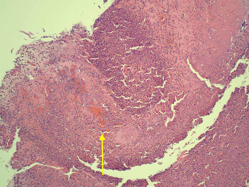 Debrided-tissue-showing-dermal-blood-vessel-with-thrombus-(yellow-arrow),-with-wall-necrosis,-and-a-neutrophilic-infiltrate