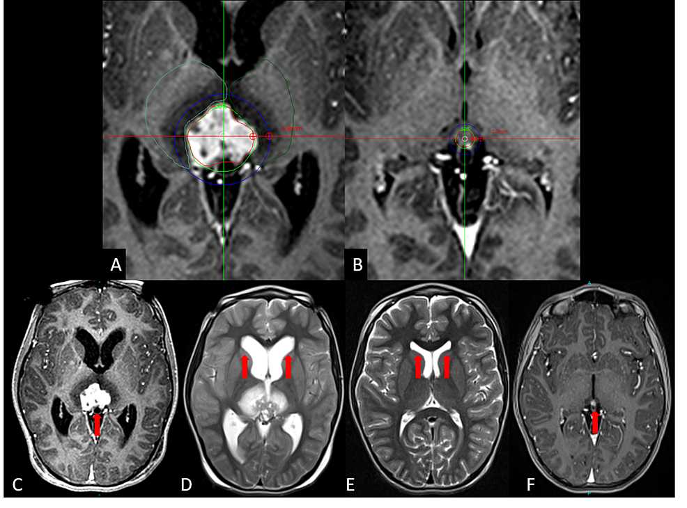 Patient-six-presenting-with-a-pinealocytoma