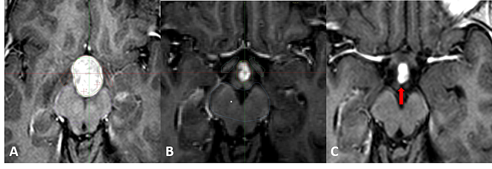 Patient-one-presenting-a-drop-metastasis-from-a-posterior-fossa-medulloblastoma