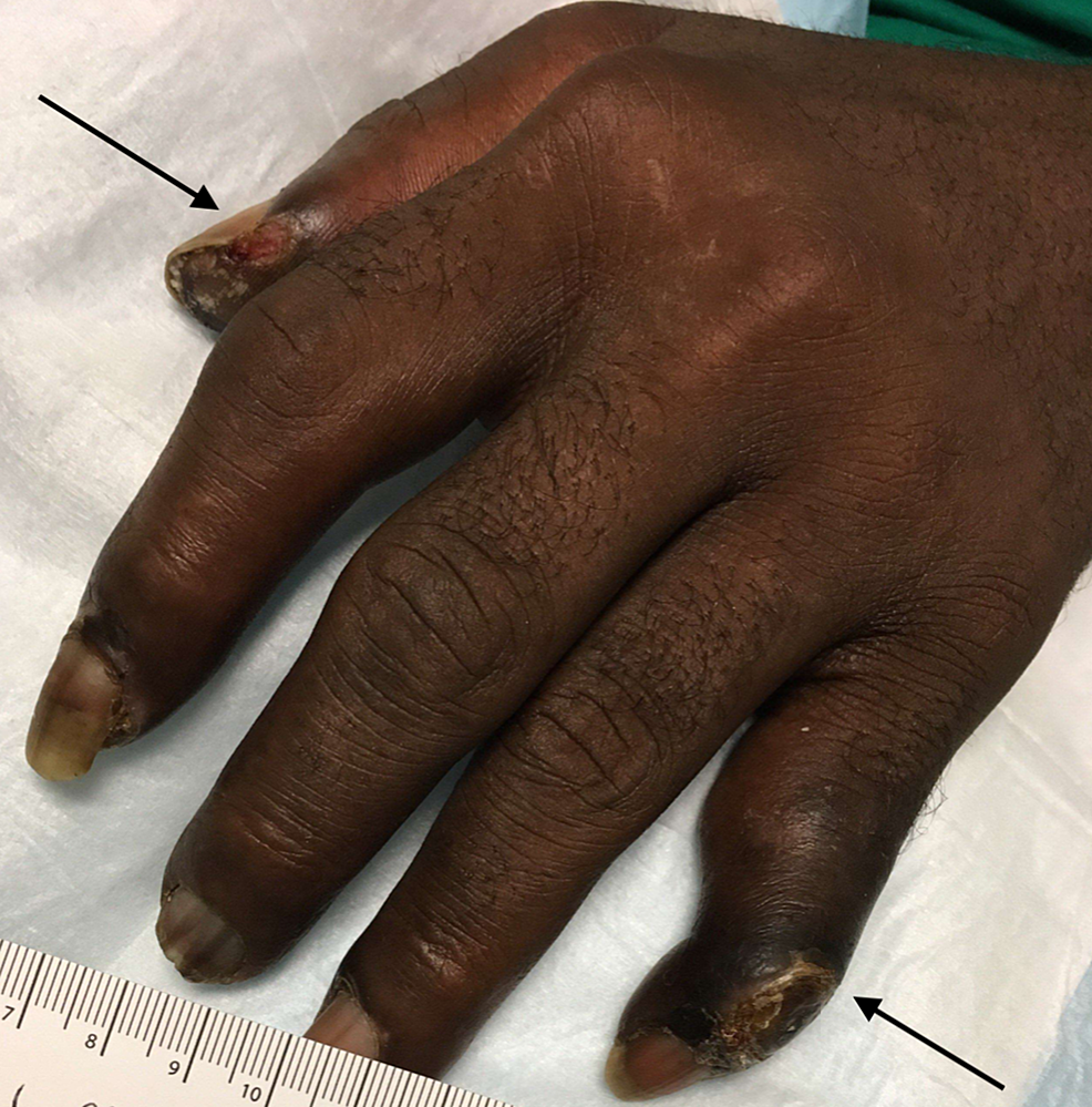 Two-digits-of-left-hand-showing-dry-gangrene-with-no-evidence-of-purulence