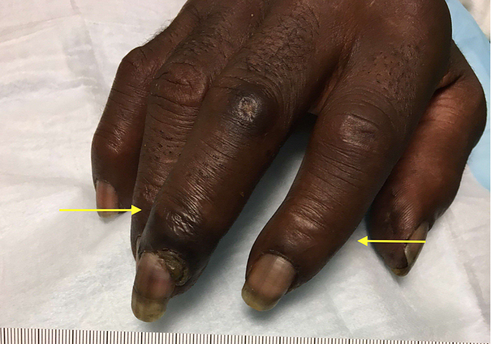 The-right-hand-showing-evidence-of-dry-gangrene