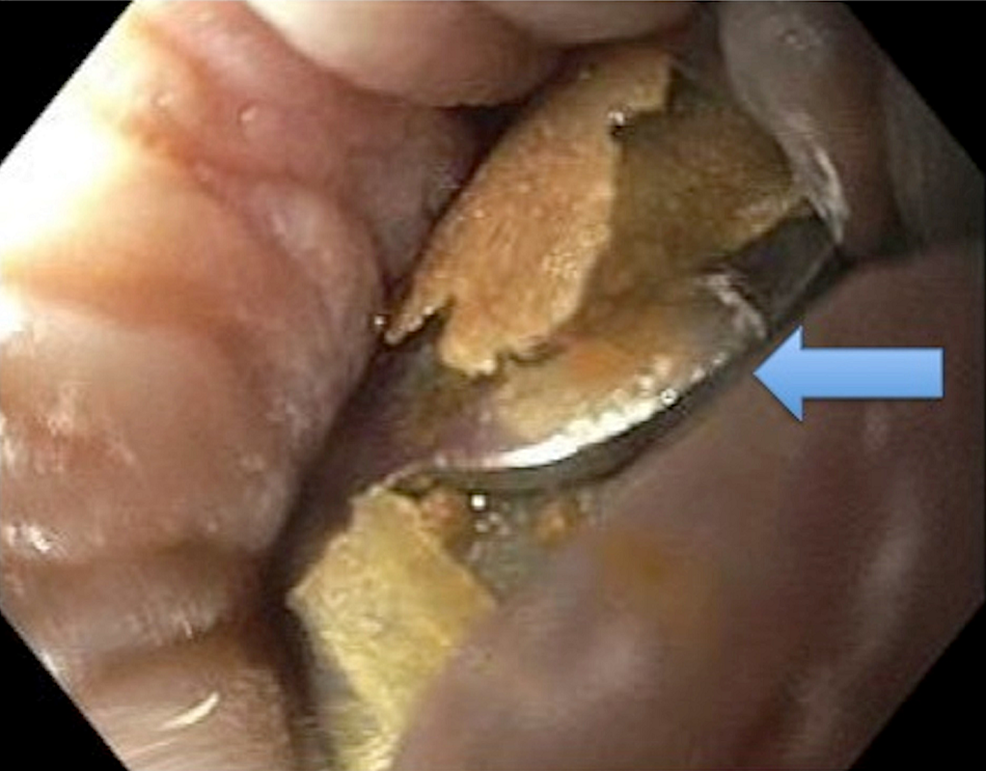 Two-over-the-scope-clips-seen-on-endoscopy-approximately-2-cm-from-the-anal-verge-embedded-in-the-mucosa-