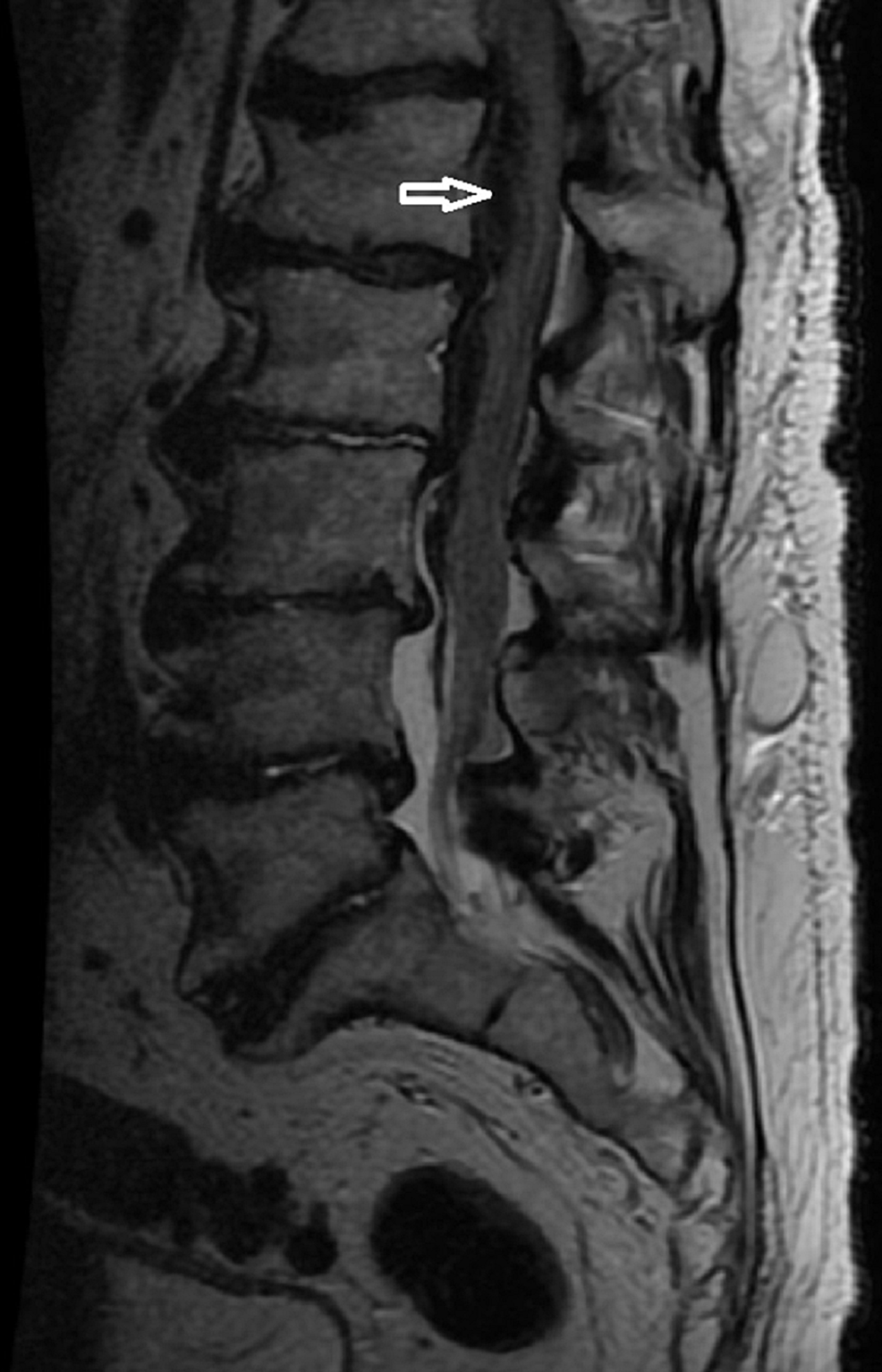 MRI-Lumbar-Spine-T2-Weighted