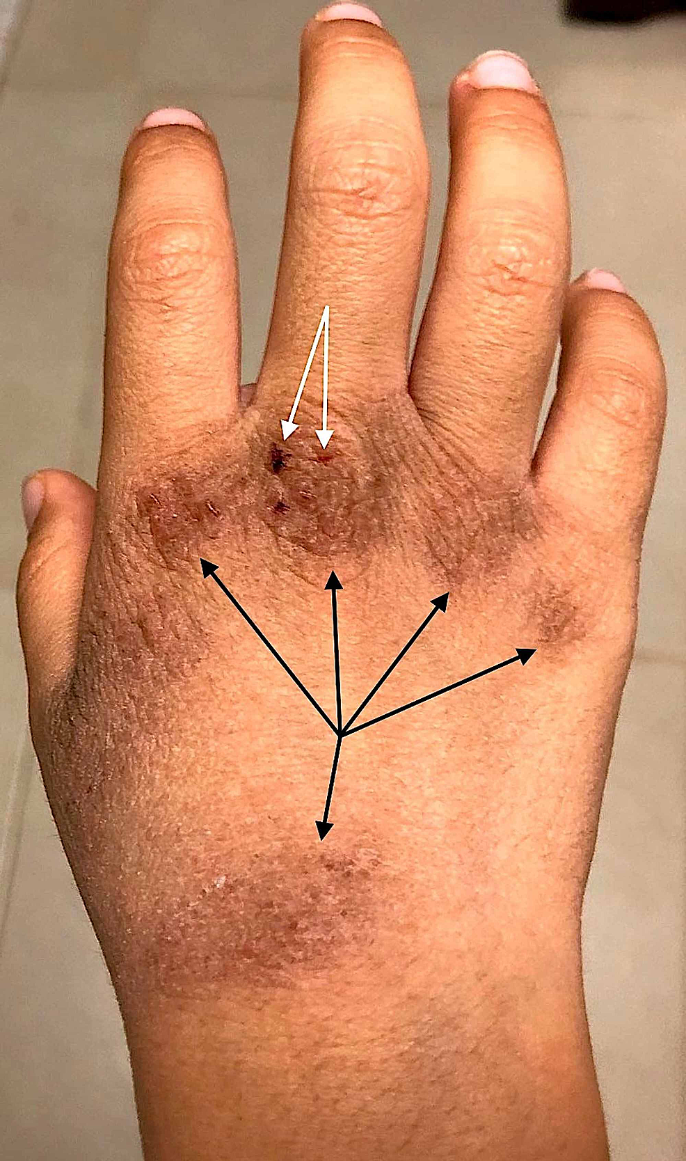 Eczematous-skin-changes-on-the-hand-of-a-19-year-old-Asian-male,-with-a-personal-history-of-atopic-dermatitis.
