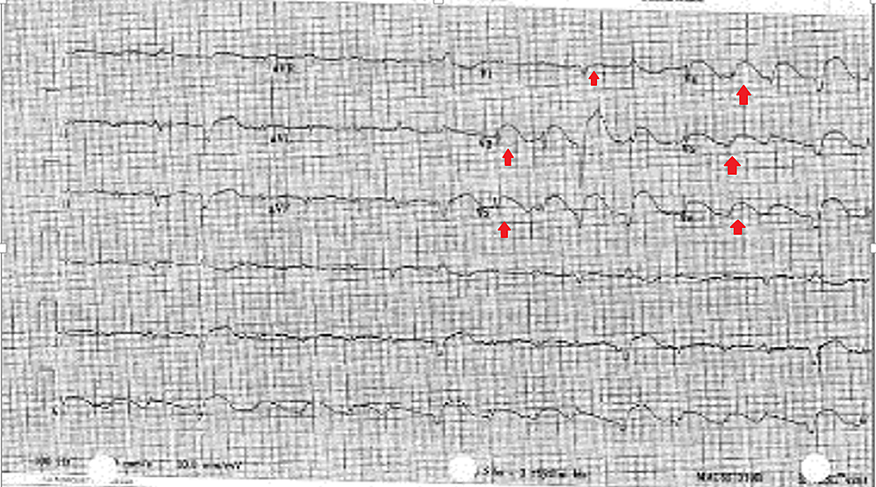 Electrocardiogram-on-presentation-showing-diffuse,-convex-ST-segment-elevations-in-leads-V1-to-V6