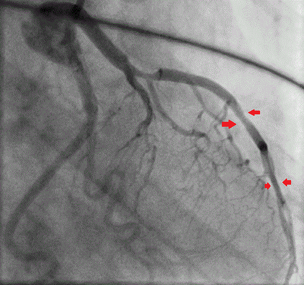 Coronary-angiography-showing-the-mid-left-anterior-descending-artery-70%-and-the-distal-left-anterior-descending-artery-60%-lesion-but-with-good-flow-in-the-left-coronary-artery-system-(shown-by-the-free-flow-of-contrast)