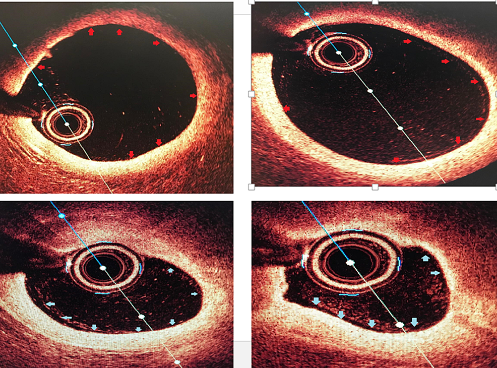 Optical-coherence-tomography-of-the-left-anterior-descending-artery-(LAD)-with-the-top-left-and-right-showing-proximal-LAD-with-minimal-luminal-irregularities-and-the-bottom-right-and-left-showing-mid-LAD-non-critical-stenosis