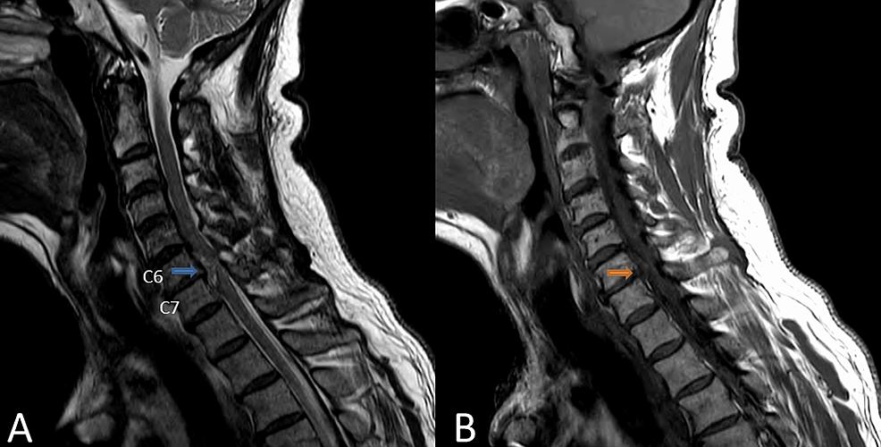 Sagittal-MRI