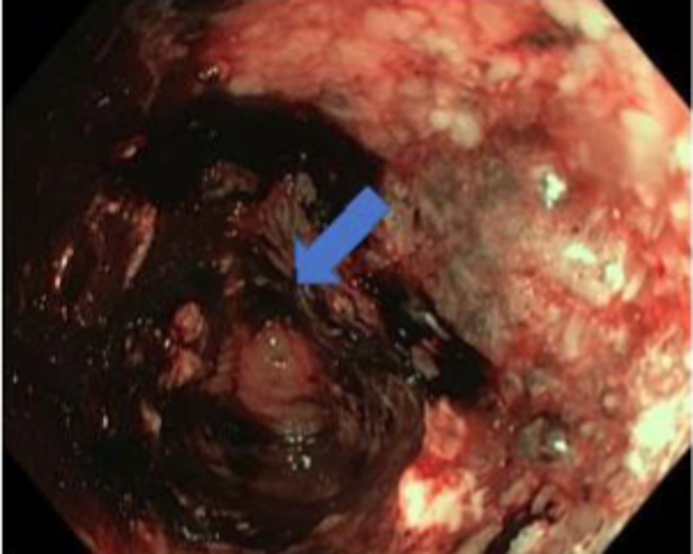 Colonoscopy-demonstrating-luminal-narrowing-marked-in-the-descending-colon-with-a-necrotic-mass-which-easily-bleeds-on-contact.