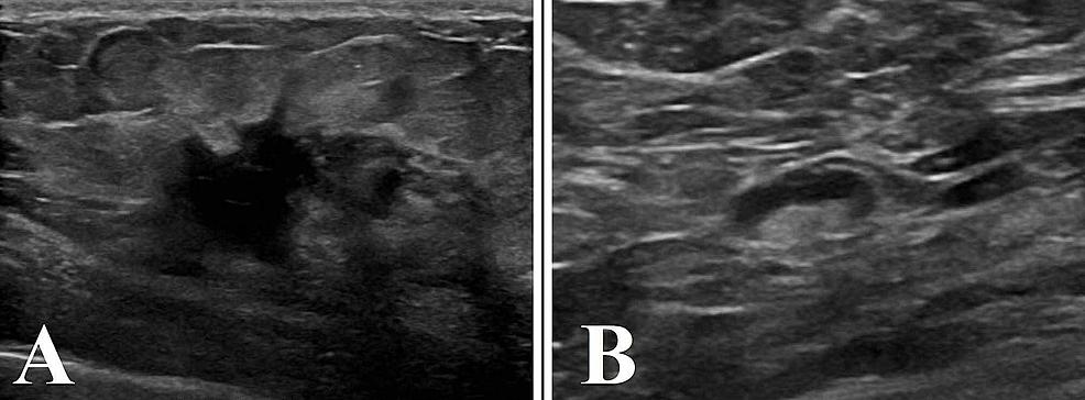 Breast-ultrasound