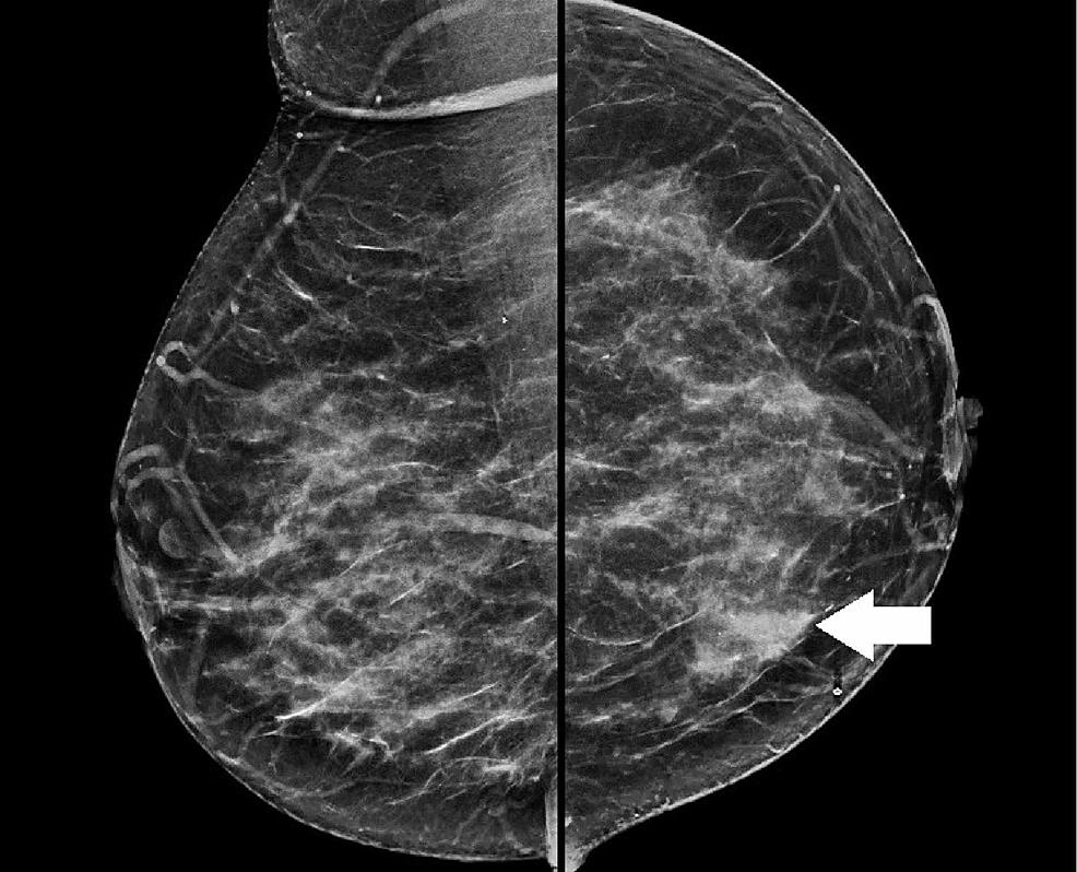 Diagnostic-mammogram