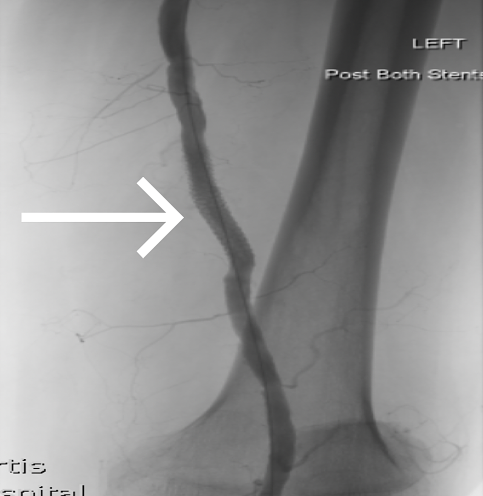 -Intraoperative-fluoroscopy-demonstrating-the-left-SFA-PSA-after-covered-stenting-post-operatively