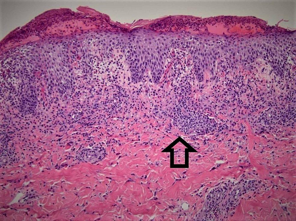 Biopsy,-skin