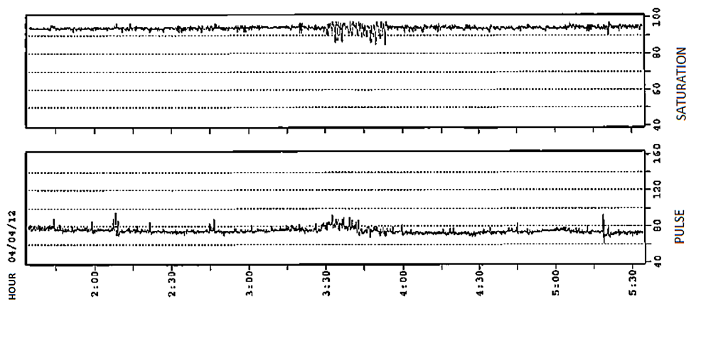 Oximetry-showing-a-mild-obstructive-sleep-pattern
