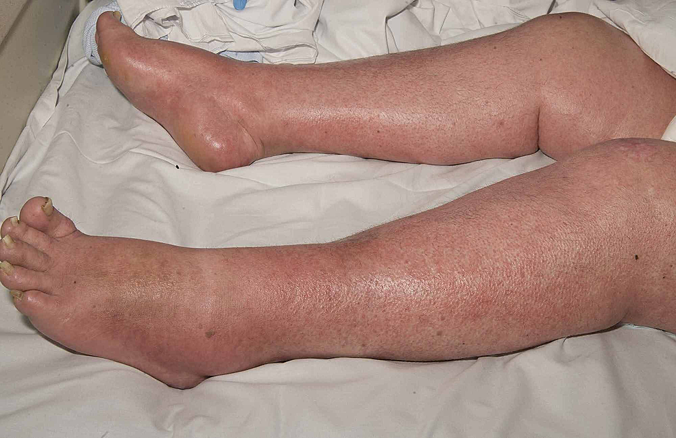 Case-1-depicting-morbilliform-rash-on-lower-limbs