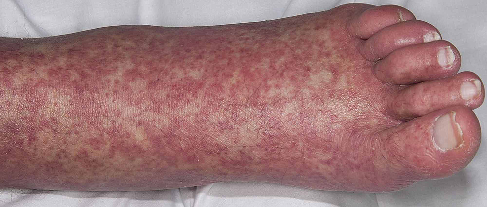 Erythematous-papular-rash-on-the-feet--in-case-2