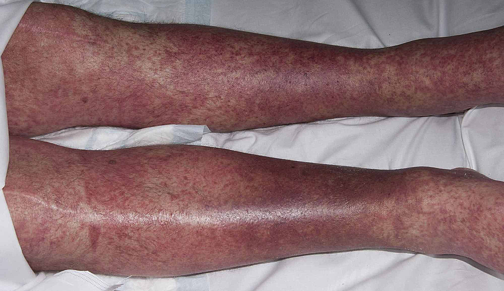 Case-2-patient-showing-erythematous-papular-rash-on-the-legs