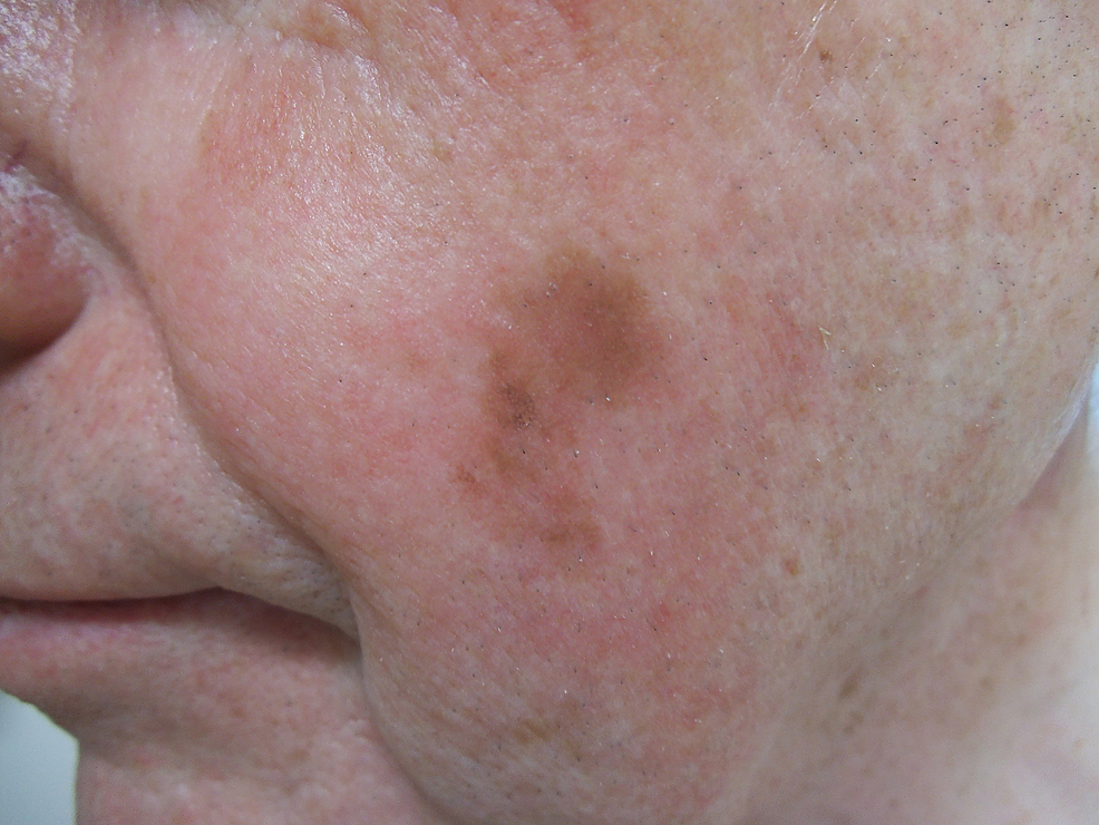 Lentigo-maligna-melanoma-on-the-left-cheek.-