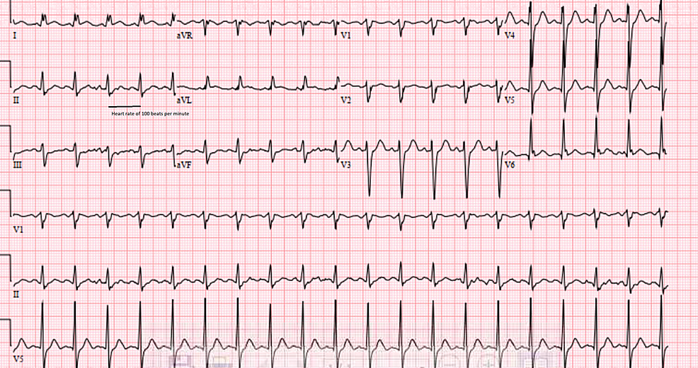 Electrocardiogram-shows-sinus-tachycardia-and-incomplete-left-bundle-branch-block-at-presentation