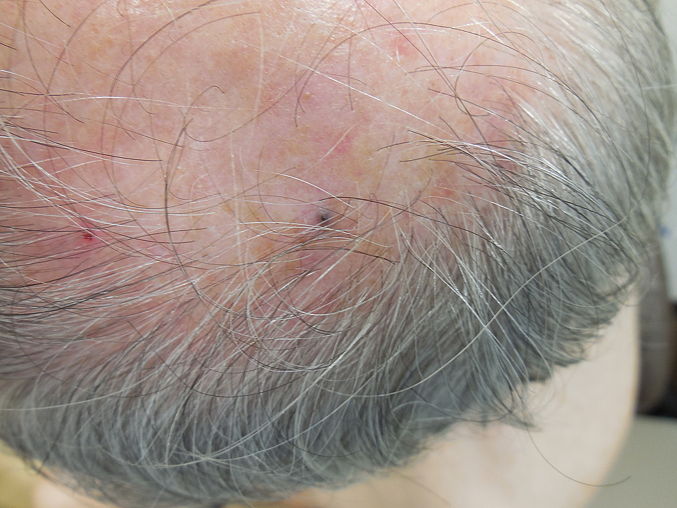 Epidermotropic-metastatic-malignant-melanoma-on-the-left-parietal-scalp.