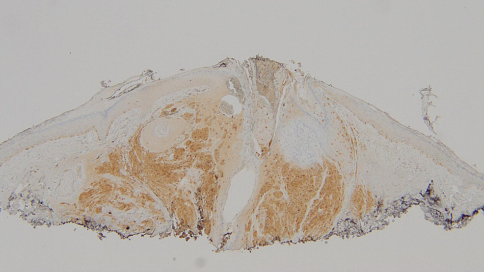 S100-stain-of-the-shave-biopsy-of-the-epidermotropic-metastatic-malignant-melanoma.