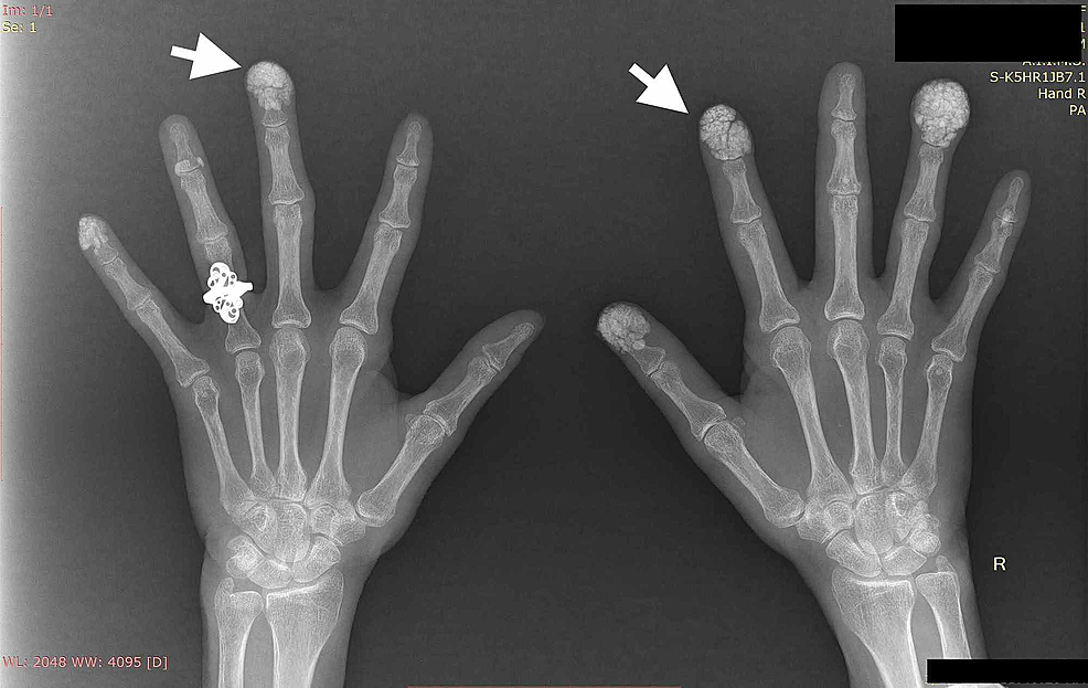 Radiograph-of-hands-showing-multiple-calcifications-within-subcutaneous-tissue-in-finger-pads-(white-arrows)