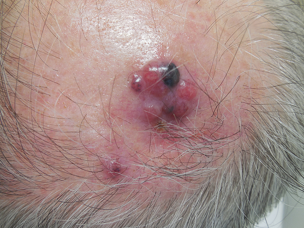 Metastatic-melanoma-on-the-left-parietal-scalp.