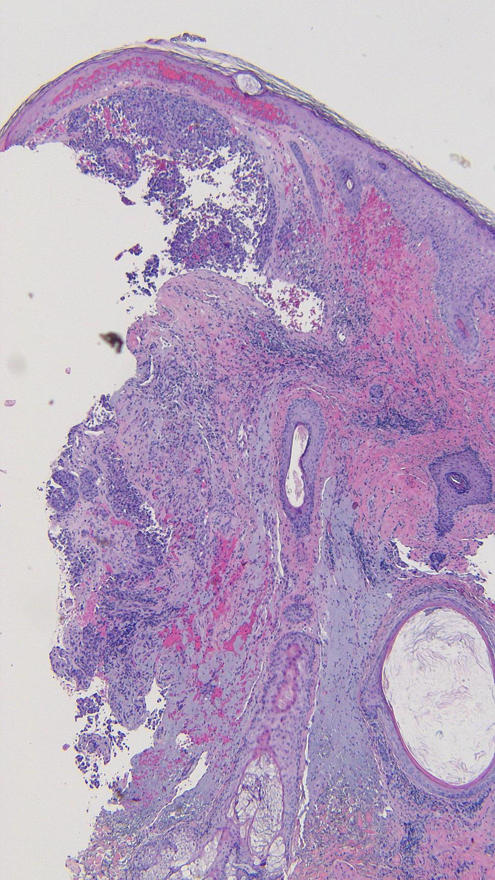 Microscopic-examination-of-the-punch-biopsy-of-the-metastatic-melanoma-on-the-left-parietal-scalp.