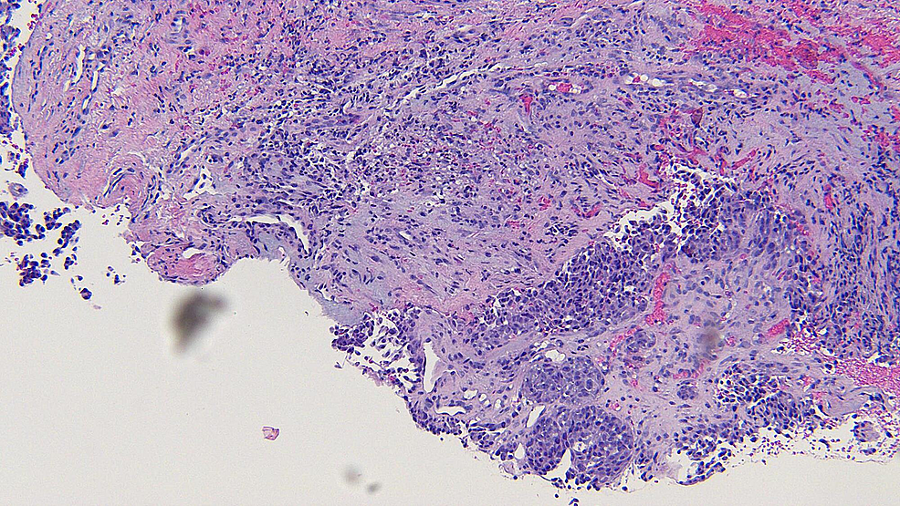 Closer-magnification-of-the-microscopic-examination-of-the-punch-biopsy-of-the-metastatic-melanoma-on-the-left-parietal-scalp.