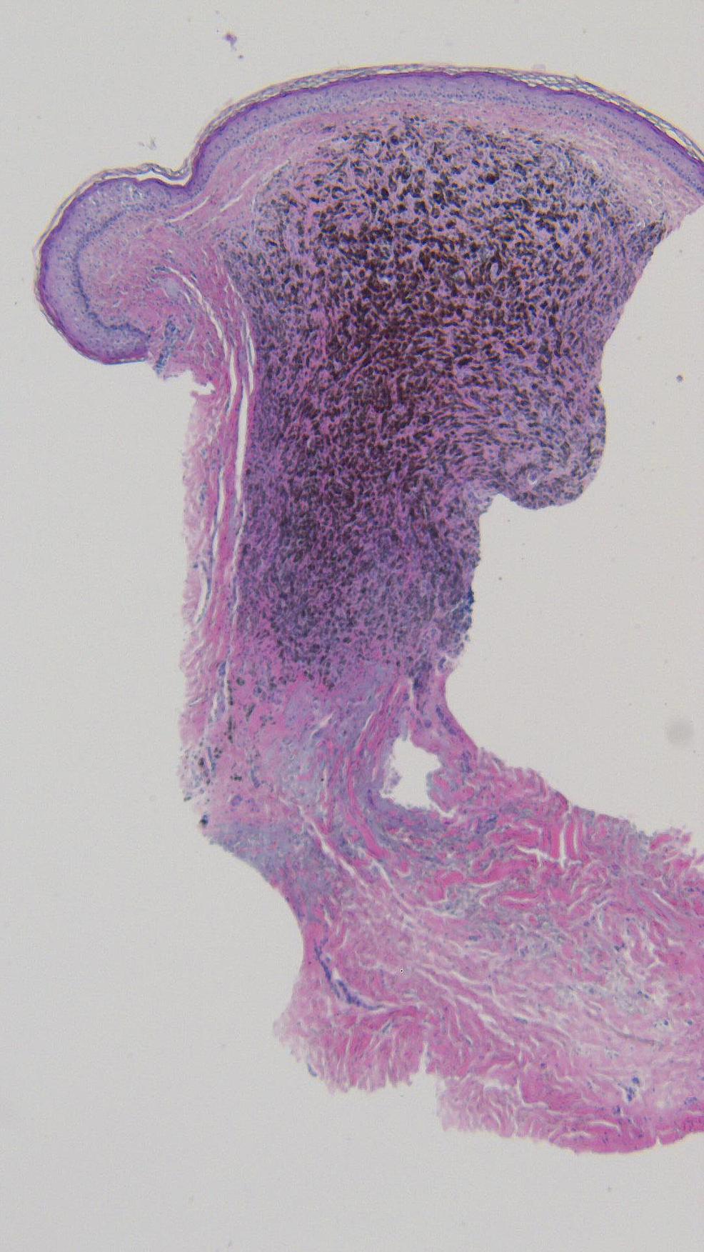 Microscopic-examination-of-the-punch-biopsy-of-the-tumoral-melanosis-on-the-left-parietal-scalp.