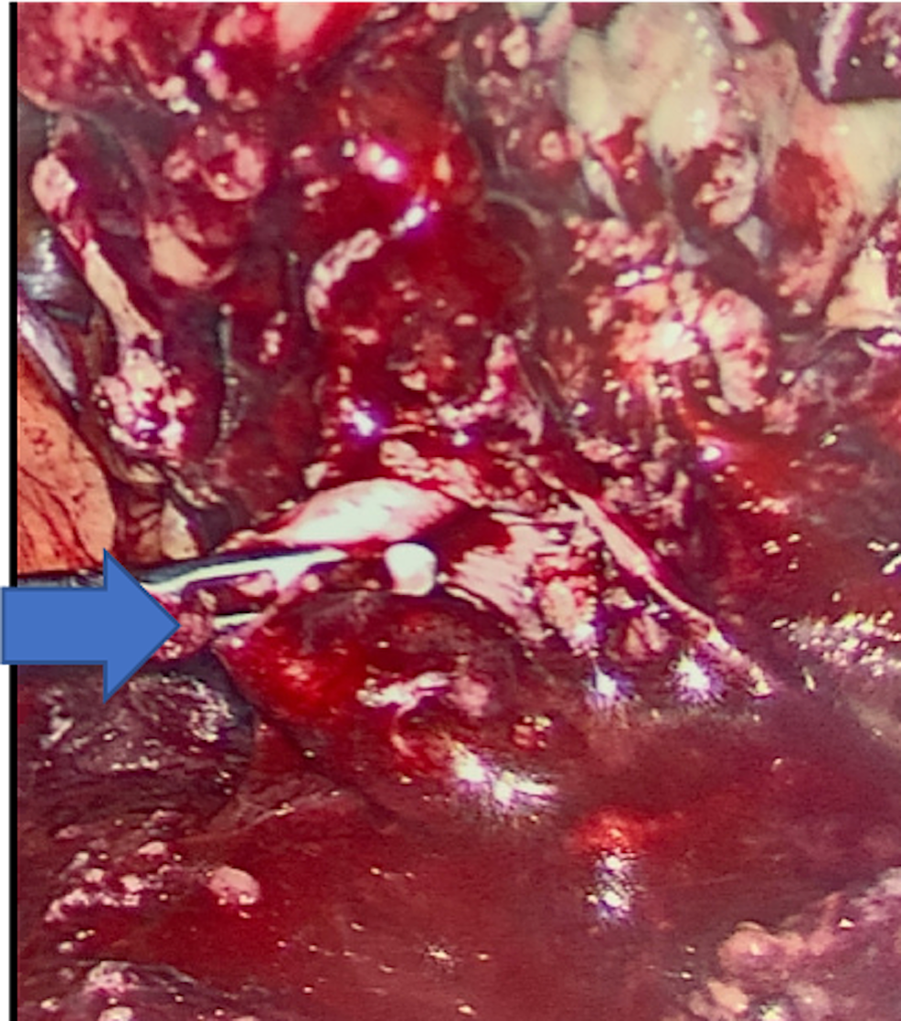 Inflamed-appendix-and-surrounding-inflammation-entering-the-right-inguinal-hernia-orifice.