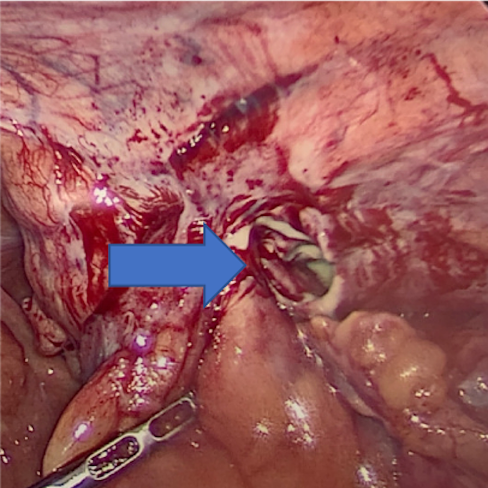 After-reduction-of-contents-showing-purulent-material-in-the-right-inguinal-hernia-orifice.