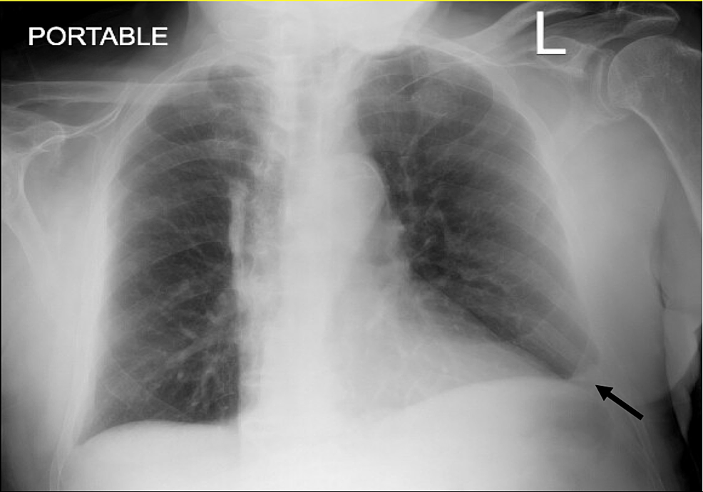 Chest-X-ray-(CXR)-showed-left-small-pleural-effusion