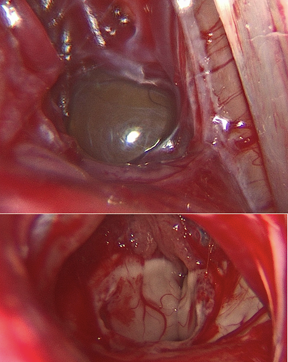 Pre--and-post-resection-endoscopic-images
