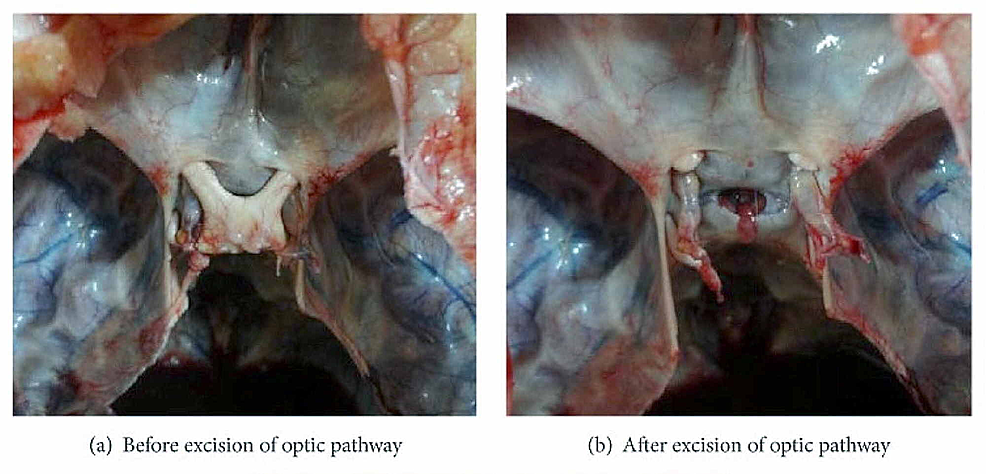 The-images-show-the-close-relationship-between-the-optic-chiasma,-the-optic-nerve,-and-the-diaphragma-sellae