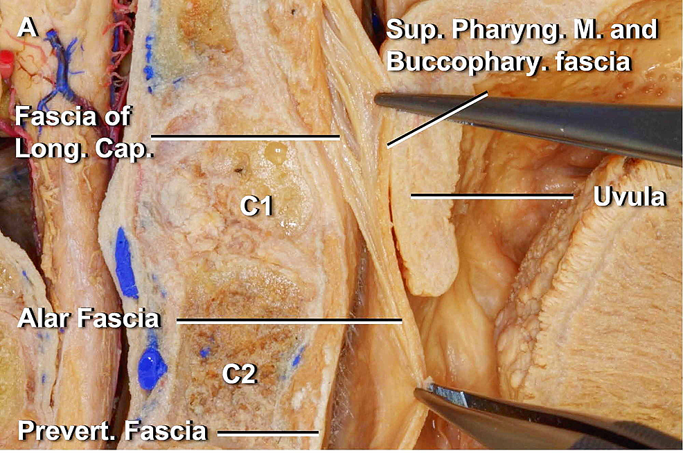 The-alar-fascia-is-identified-behind-the-buccopharyngeal-fascia-below-the-C1-level-and-fuses-to-the-fascia-of-the-longus-capitis-lateralis-muscle-above-the-C1-level.-The-tongue-is-seen-in-its-most-proximal-portion-in-the-figure,-on-the-far-right.