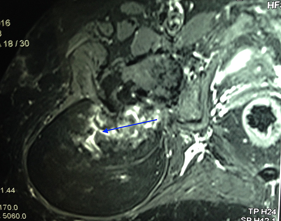 T2-weighted-MRI-showing-tumour-mass
