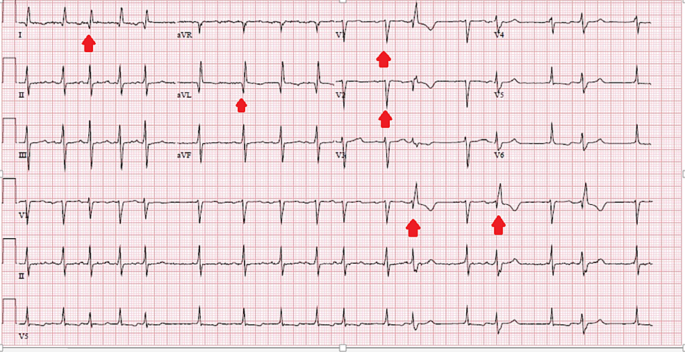 Electrocardiogram-showing-occasional-premature-ventricular-complexes,-Q-waves-in-leads-I,-avL,-V1,-and-V2-suggesting-a-prior-antero-lateral-infarct,-and-irregular-rhythm-suggesting-atrial-fibrillation-(red-arrows)