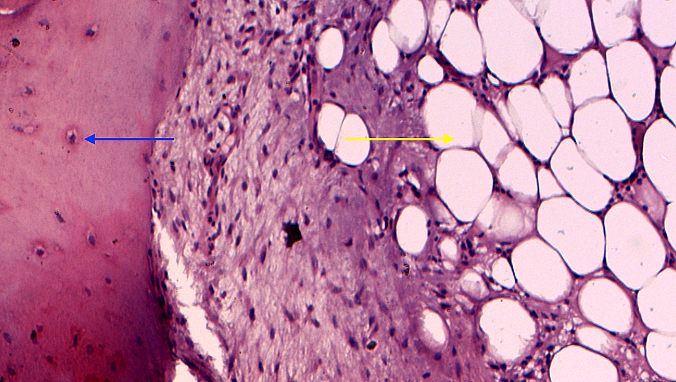 There-was-mature-trabecular-bone-(blue-arrow)-within-the-mature-adipose-tissue-(yellow-arrow)