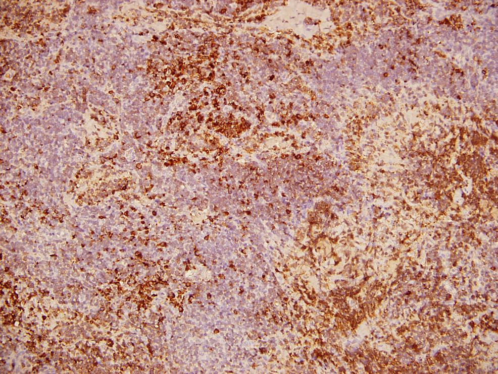 Retroperitoneal-adenopathy-biopsy-(Kappa-light-chains)
