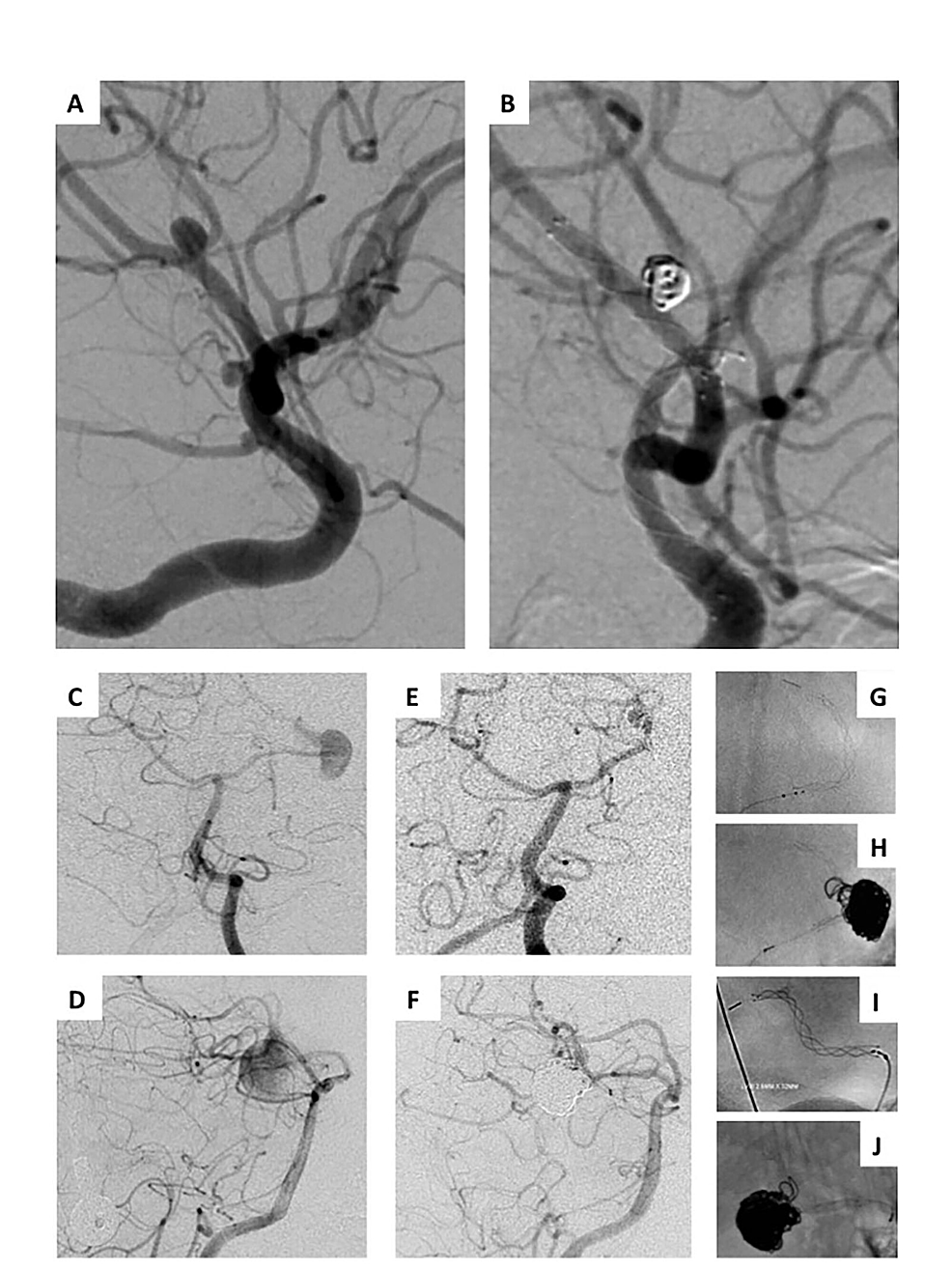 Stent-assisted-coiling-and-flow-diversion-with-LVIS-Jr.