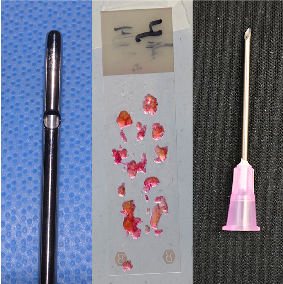 Fat-harvested-with-a-4-mm-cannula-produced-particles-up-to-4-mm-in-size,-which-were-successfully-injected-without-obstruction-through-a-16-gauge-needle-with-a-nominal-internal-diameter-of-1.19-mm.